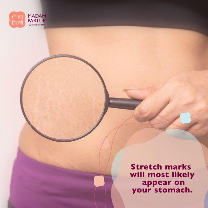 Stretch marks after birth